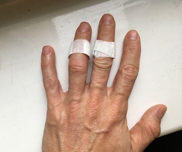Blutegel-Therapie Finger