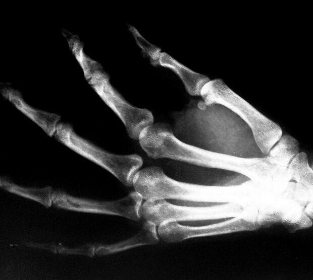 KL Röntgenbild einer Hand