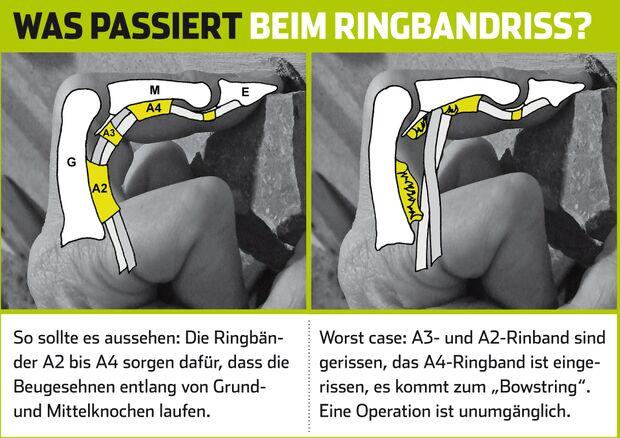 KL_Verletzungen_Ringbandriss_SChema (jpg)
